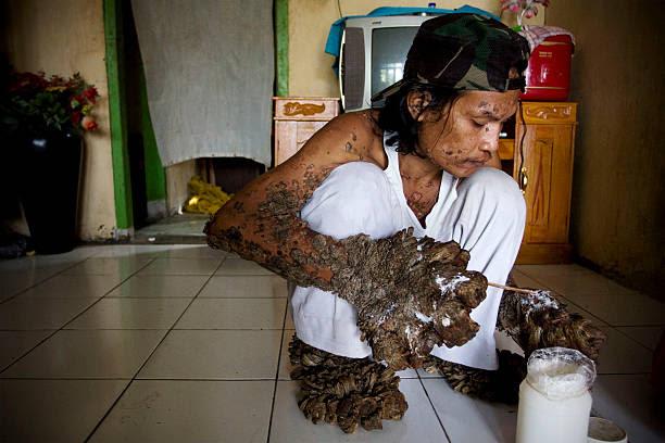 デデ コサワ の写真 画像 Id 94508488 Indonesian Tree Man