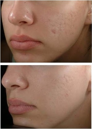 Talented message how to prevent facial scarring right! good