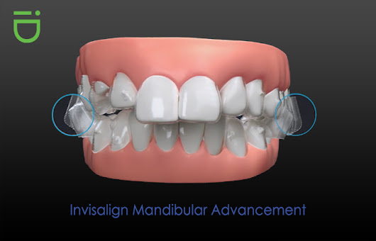 Explaining the Purpose of Mandibular Advancement to Correct Smiles