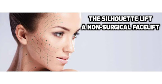 The Silhouette Lift – A Non-Surgical Facelift Alternative