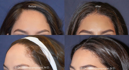 Find New Facial Proportions with Hairline Lowering