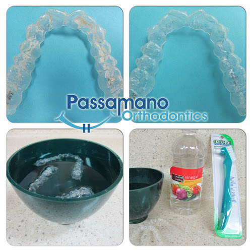 How to Clean a Crusty Invisalign Tray or Retainer at Home