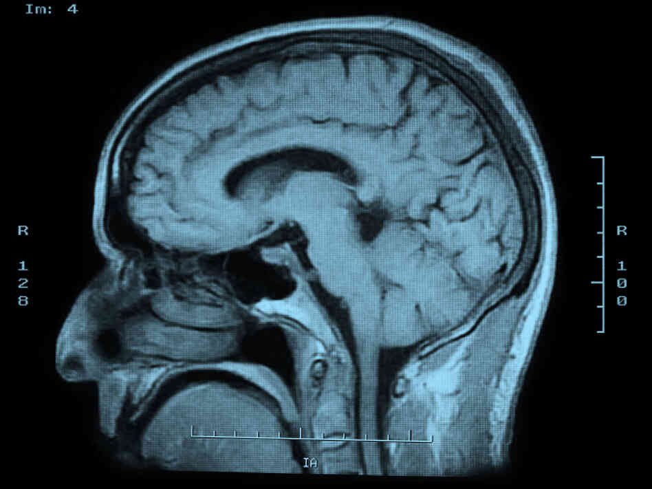 Teenage Brains Are Malleable And Vulnerable, Researchers ...