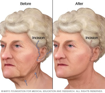 Face-lift - Mayo Clinic