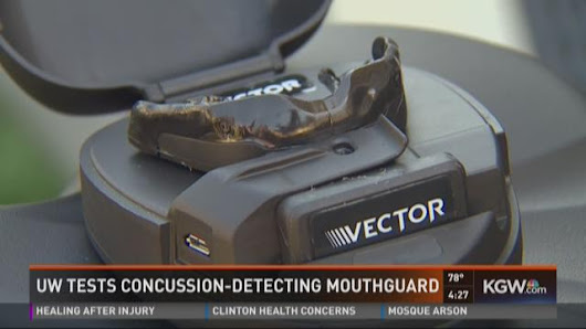 UW testing concussion-detecting mouthguards