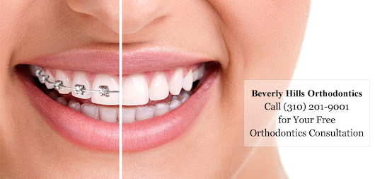 Do You Have Misaligned Teeth? Top 3 Benefits of Orthodontics - Cosmetic Dentist | Smile Angels of Beverly Hills Bruce Vafa DDS.