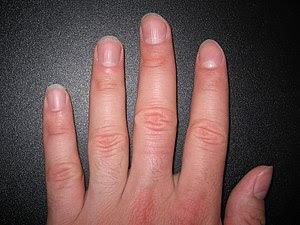 English: Fingernails, about 2mm long Deutsch: ...