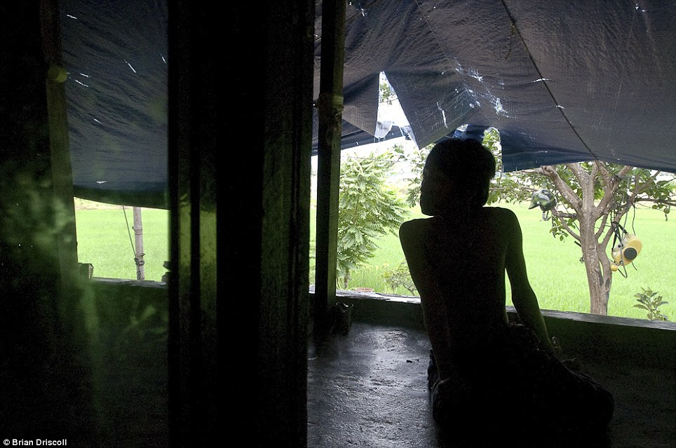 Shadow: Le Sinh, 14, Agent Orange victim, looks out from the lanai at home in the Benh Vien district, Da Nang