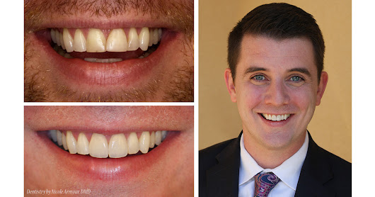 Conservative Makeovers - Armour Dentistry