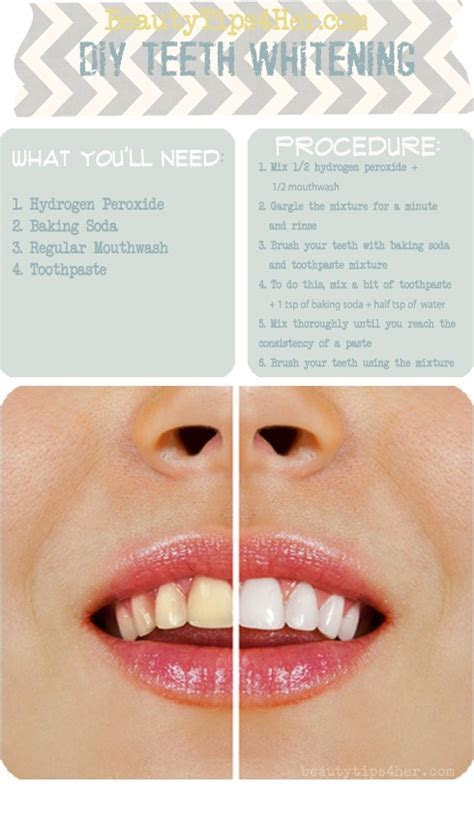 Homemade Teeth Whitening   Best DIY Tricks