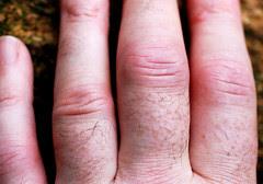 Rheumatoid Arthritis Fingers