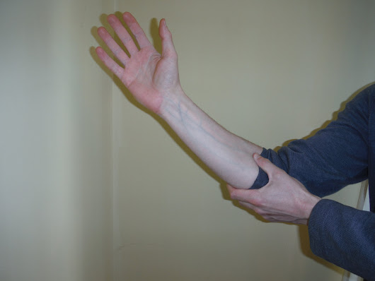 Cubital Tunnel Syndrome - Sports Rehab & Wellness