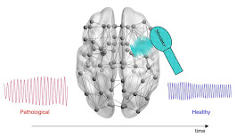 New Computational Tool May Help Optimize Alzheimer's Treatments