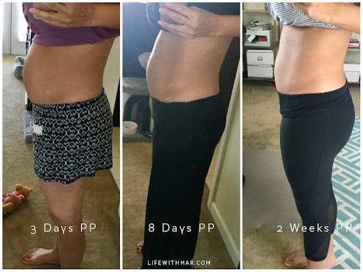Bellefit Postpartum Girdle Review | Bellefit Before and After