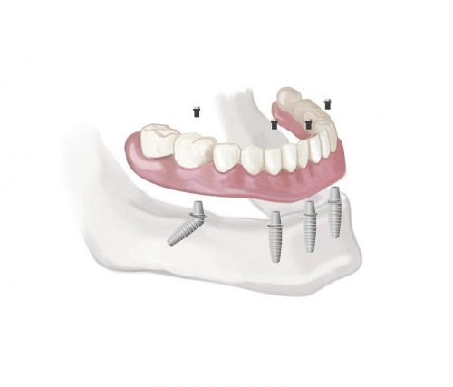 Implants to Solve Multiple Tooth Loss Problems | Life Dental Implants