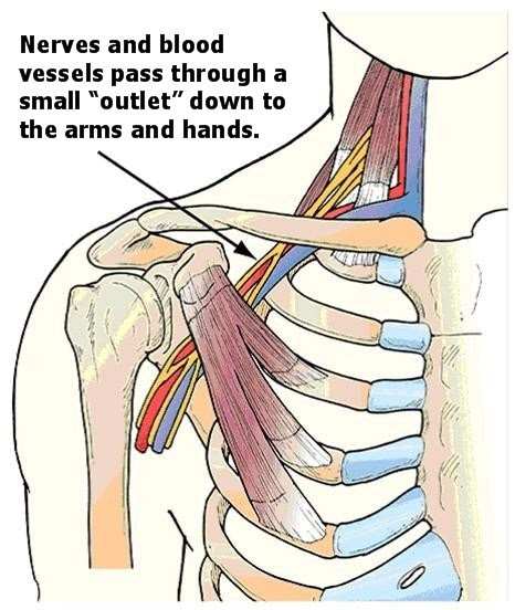 Thoracic Outlet Syndrome Treatment -