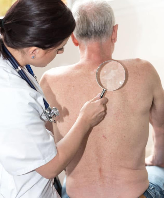 How To Effectively Help With Skin Cancer|Answering Caregiving Problems