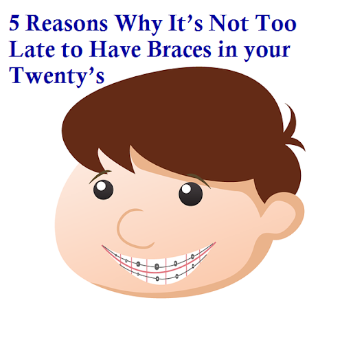 Braces in your Twenty's, 5 Reasons Why It's Not Too Late