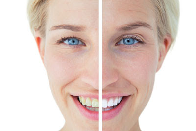 Teeth Whitening in Long Grove to Get Beautiful Teeth