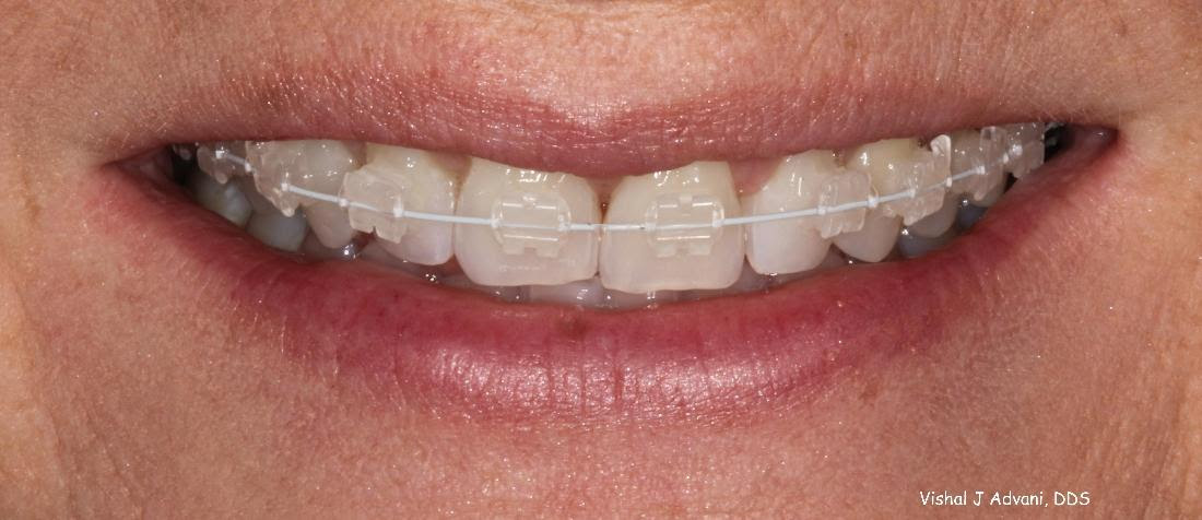 Elk Grove Village IL Dentist   Short Term Braces   Smile Gallery