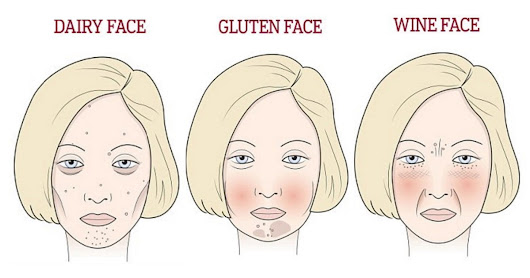 Skincare Doctor Shows What Gluten, Sugar And Wine Does to Your Face