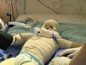 A menina teve 80% do corpo queimado durante um incêndio ocorrido em sua casa. (Foto: BBC)