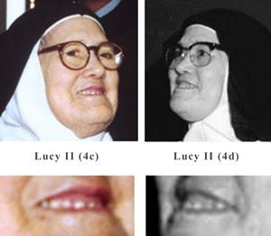 The teeth or dentures of sister lucy II