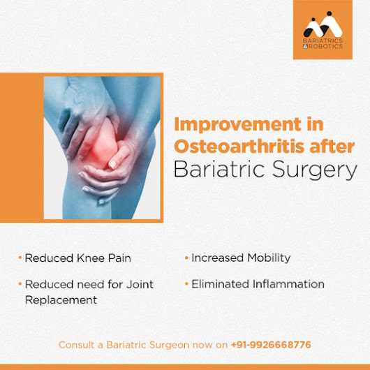 Improvement in Osteoarthritis after Bariatric Surgery