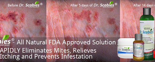 How Dr. Scabies Is Different From Pharmaceutical Scabicides