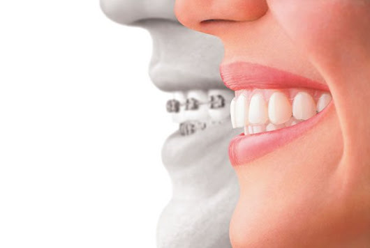 Reasons Why Invisalign Are More Preferred to Metal Braces