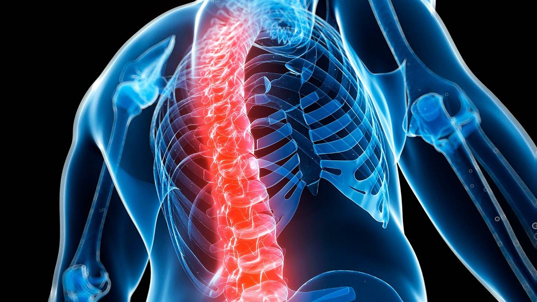 Hasil gambar untuk osteoporosis