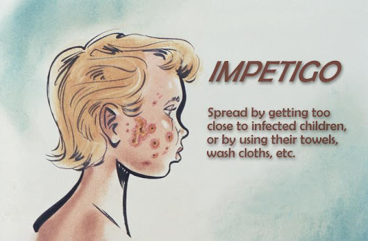Impetigo: Treatment, control and prevention - Outbreak News Today