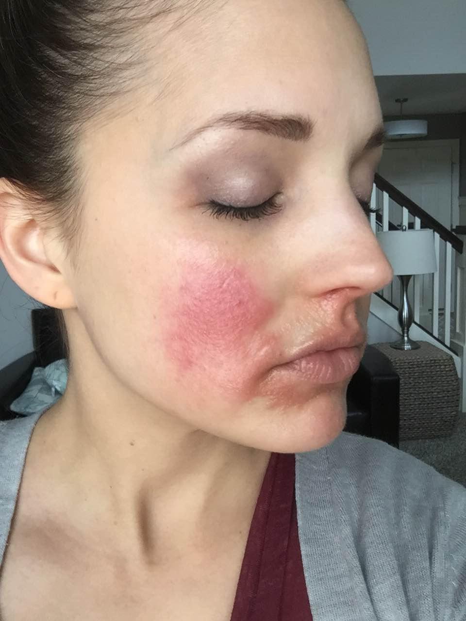 eczema: eczema around nose and chin