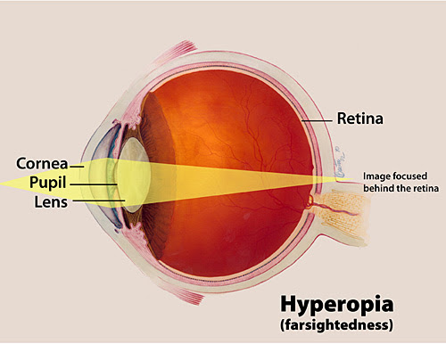 Facts About Hyperopia | National Eye Institute