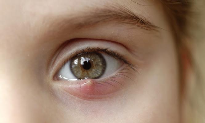 κριθαράκι στο μάτι