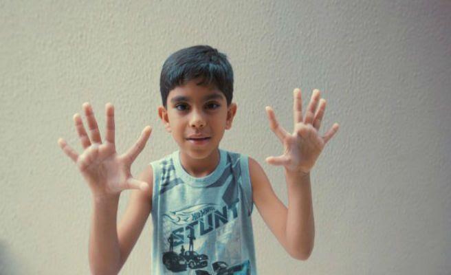 Conoce a los Da Silva, 14 familiares con 6 dedos en pies y manos
