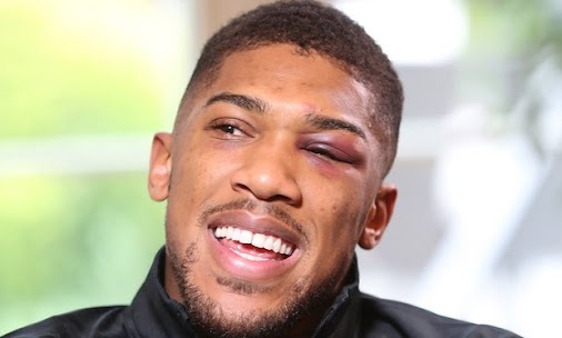 http://bit.ly/2plJIFA : #Anthony #Fury - #Anthony Joshua eager to take on 'a real villain' #with Tyson...