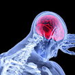 Tampa Brain Injury Attorneys and Spinal Cord Injury Lawyers