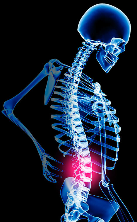 Click Here for back pain