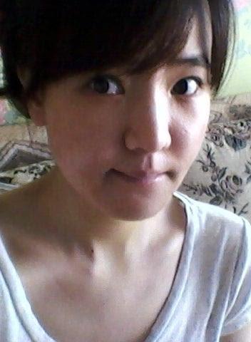 ID美容外科、しゃくれ顎、韓国美容整形、小顔