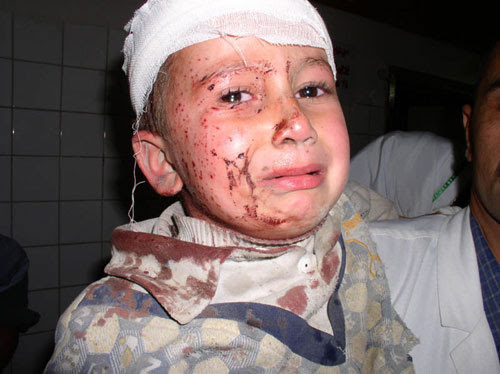 Wounded Iraqi Child - Click Photo for Video