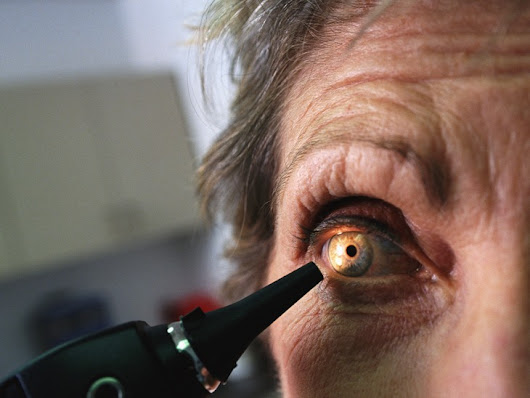 Why more boomers are getting cataract surgery at a younger age  - TODAY.com