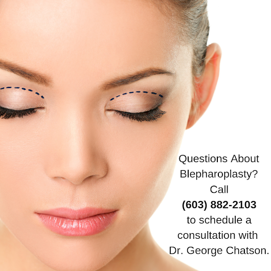 Can Blepharoplasty Change Vision?