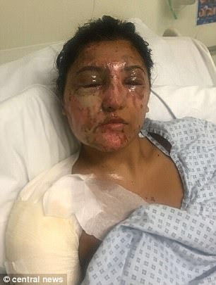 Aspiring model Resham Khan, 21, suffered 'life-changing' injuries in the acid attack