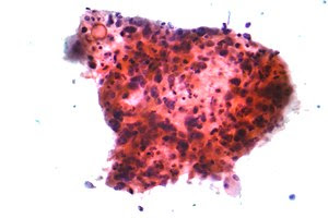 Micrograph of squamous carcinoma, a type of no...