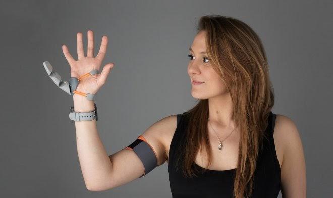 Появление на руке дополнительного искусственного пальца существенно меняет работу мозга
