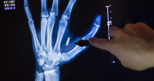 Why You're Probably Getting a Microchip Implant Someday