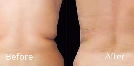 No. 1 CoolSculpting Provider in Okalahoma and Arkansas