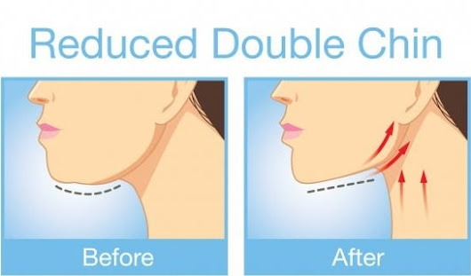 New Non-Surgical Treatment Zaps Away that Double Chin - Min S. Ahn
