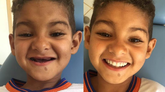 Brazil boy regains smile after losing all his teeth - BBC News